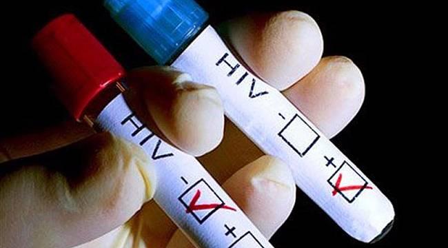AIDS Hakkında Merak Edilen Her Şey!
