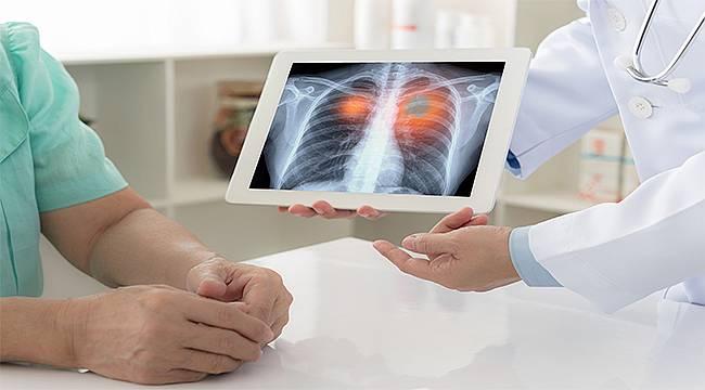 Akciğer kanseri ve tedavisi konusunda bilinmesi gerekenler